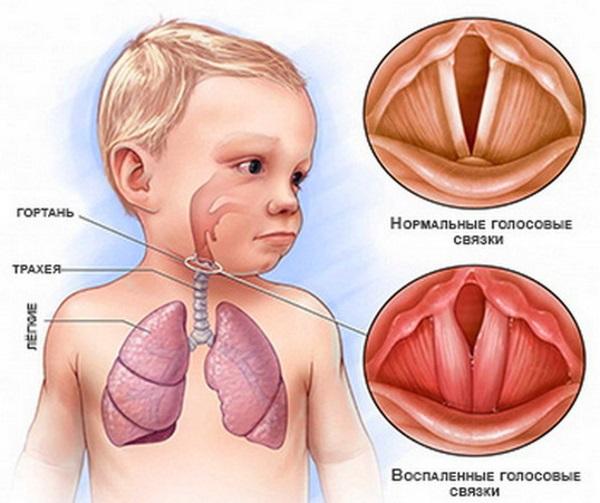Воспалительный процесс в гортани