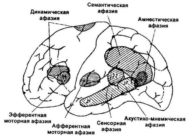 Поражения мозга при афазии